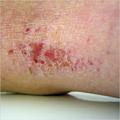 eczema soft water